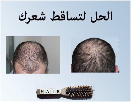 ٢٠ طريقة لعلاج تساقط الشعر للرجال
