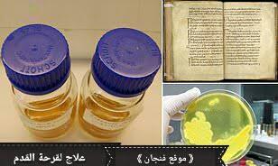 Bald's eyesalve علاج منَ القرون الوسطى لقرحة القدم السكرية المُقاومة للمضادات الحيوية