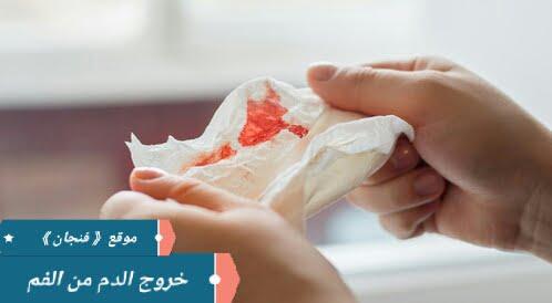 ما هي أسباب خروج الدم من الفم؟