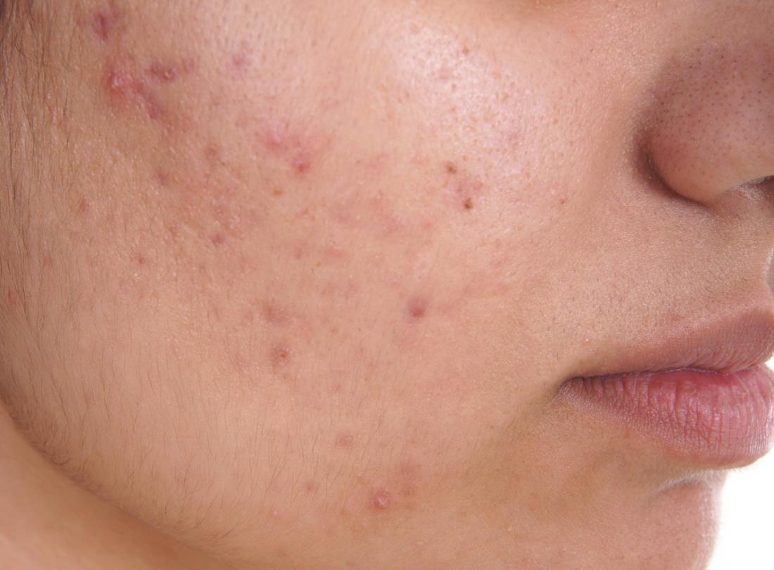الأمراض الجلدية بالصور وعلاجها