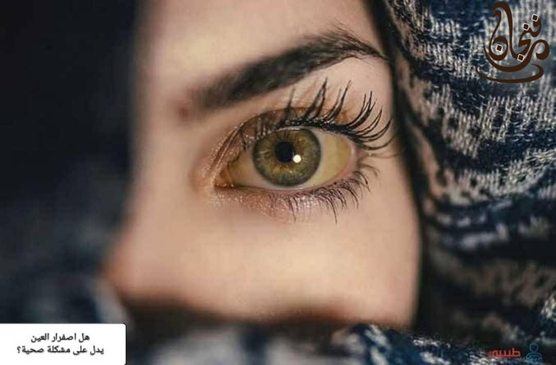 اصفرار العين