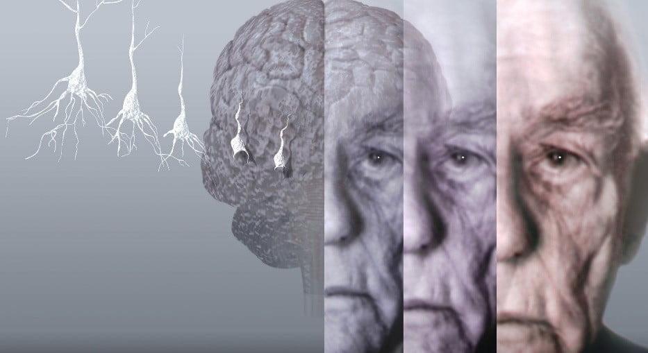 مراحل مرض الزهايمر