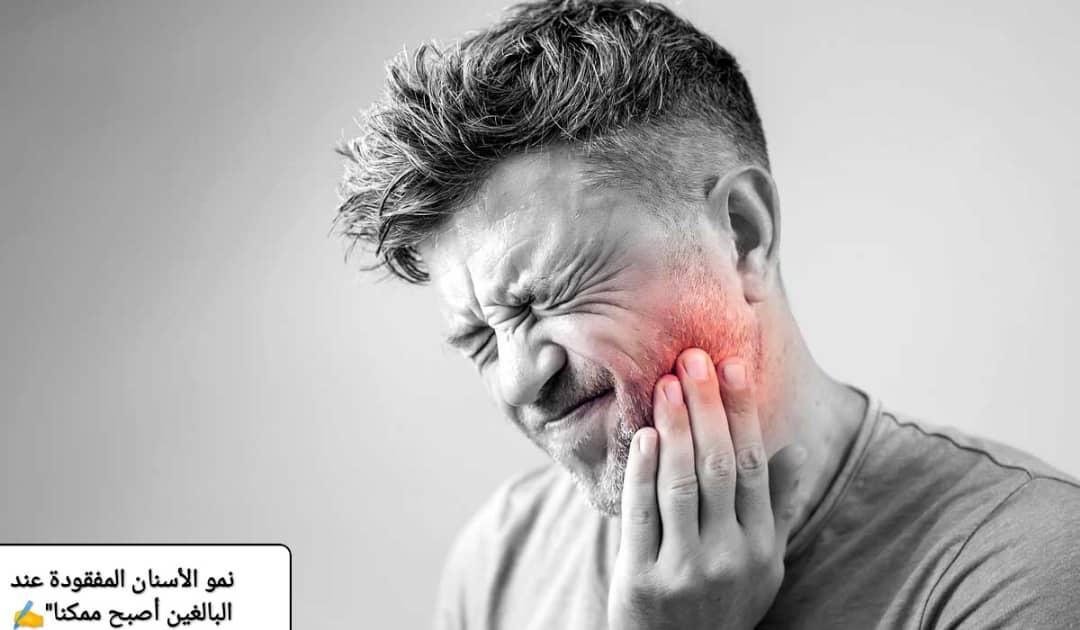 نمو الأسنان المفقودة