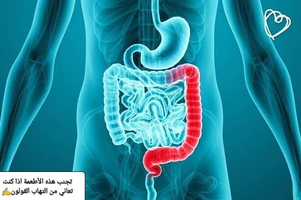 التهاب القولون