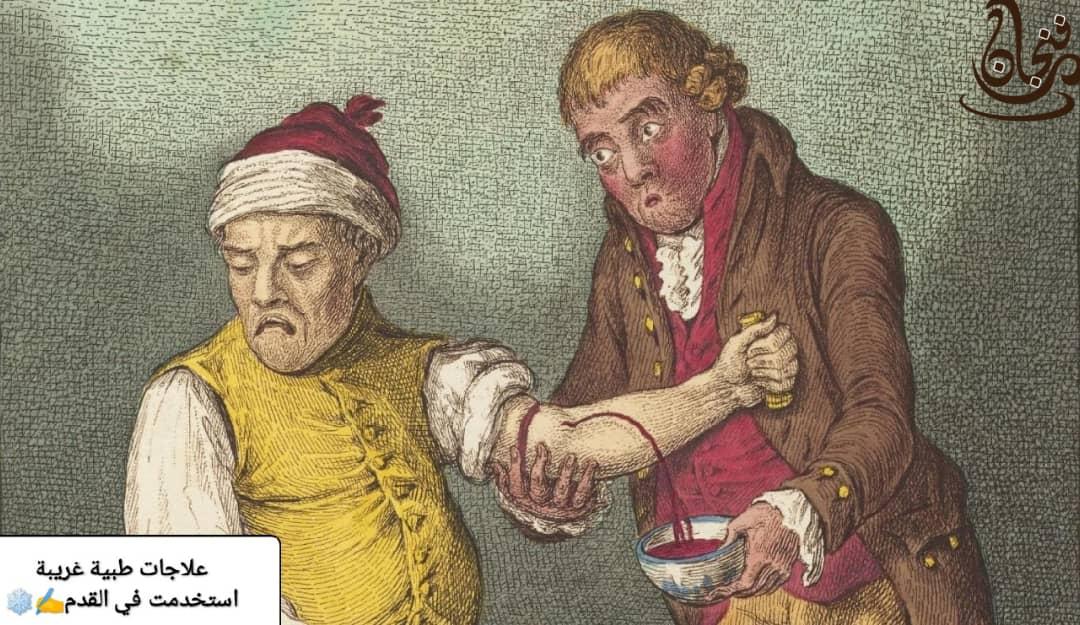 علاجات طبية غريبة استخدمت في العصور القديمة