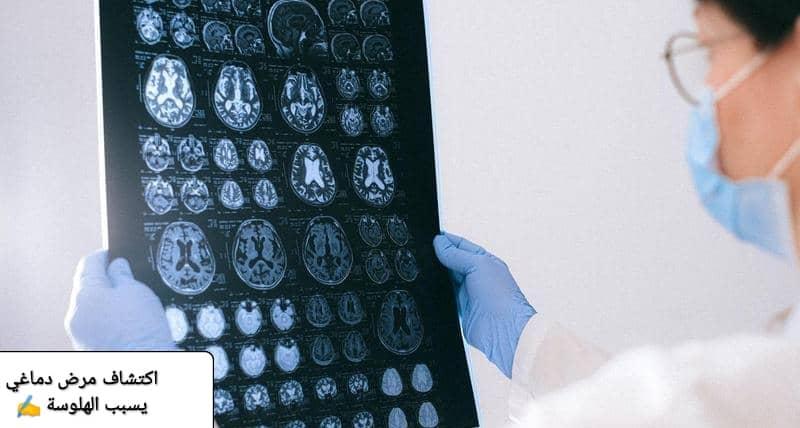 مرض دماغي
