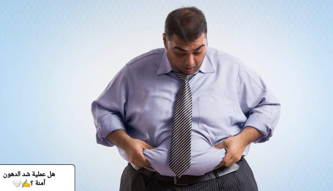 هل عملية شفط الدهون آمنة